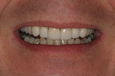 Veneers Patient Case 2 After