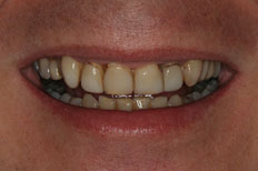 Veneers Patient case 2 before