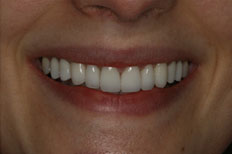 Porcelain Veneers case after