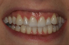 Porcelain Veneers case 3 before
