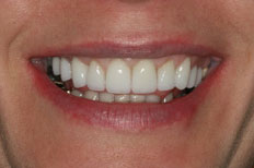 Patient Case 4 Veneers after treatment