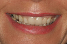 Porcelain Veneers patient case 4 before treatment