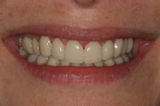 Veneers Patient Case 5 After