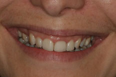 Veneers Patient Case 5 before